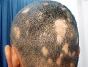 Medicamentos contra la Alopecia areata