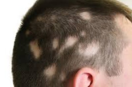 Tratamiento contra la Alopecia areata