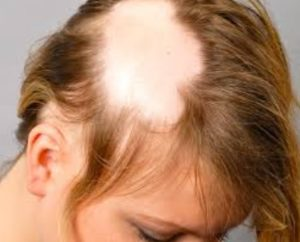 Problemas de la alopecia femenina