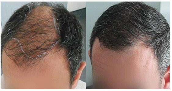 signos de la alopecia androgénica