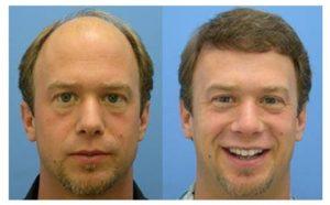 Problemas en el implante de pelo