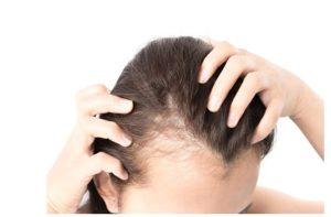 desventajas o contras del implante de cabello