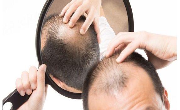 Medicamentos en el postoperatorio de implante de pelo