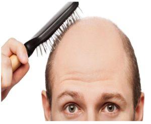 Complicaciones en el postoperatorio de implante de pelo