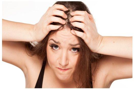 Tipos de alopecia en mujeres