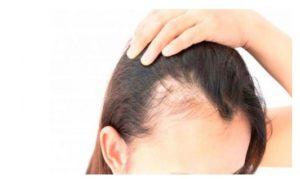 Causas de la alopecia en mujeres