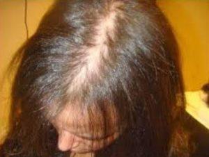 Como detener la alopecia femenina
