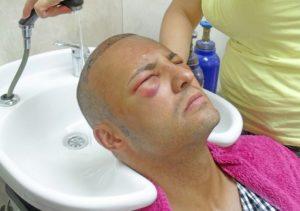 Masajes para el Implante de Cabello