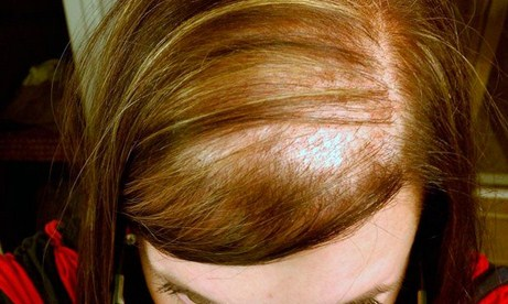 Causas de la alopecia femenina