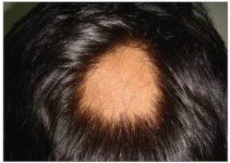 Los tipos de alopecia