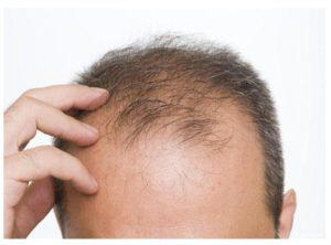 Alopecia cicatricial