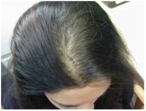 causas de la alopecia androgénica