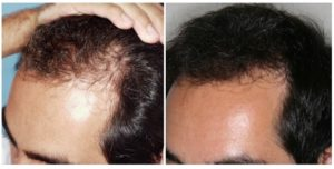 complicaciones y contras del implante de cabello
