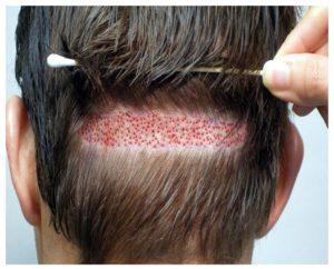 Mejores antibióticos para el implante de pelo