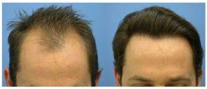 Antibióticos para el implante de pelo