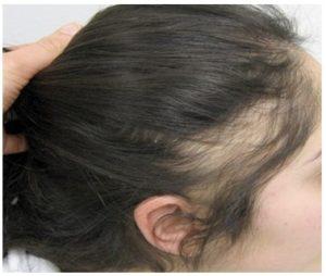 Diagnóstico de las causas de la alopecia