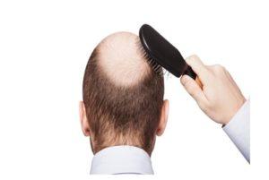 Tratamientos para Estabilizar la caída del cabello